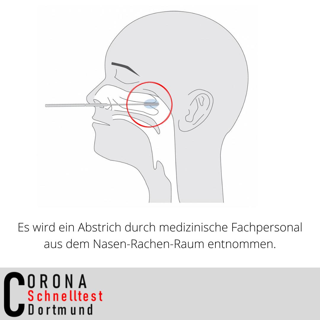 Coronaschnelltest in Dortmund - Testungen durch medizinisches Fachpersonal
